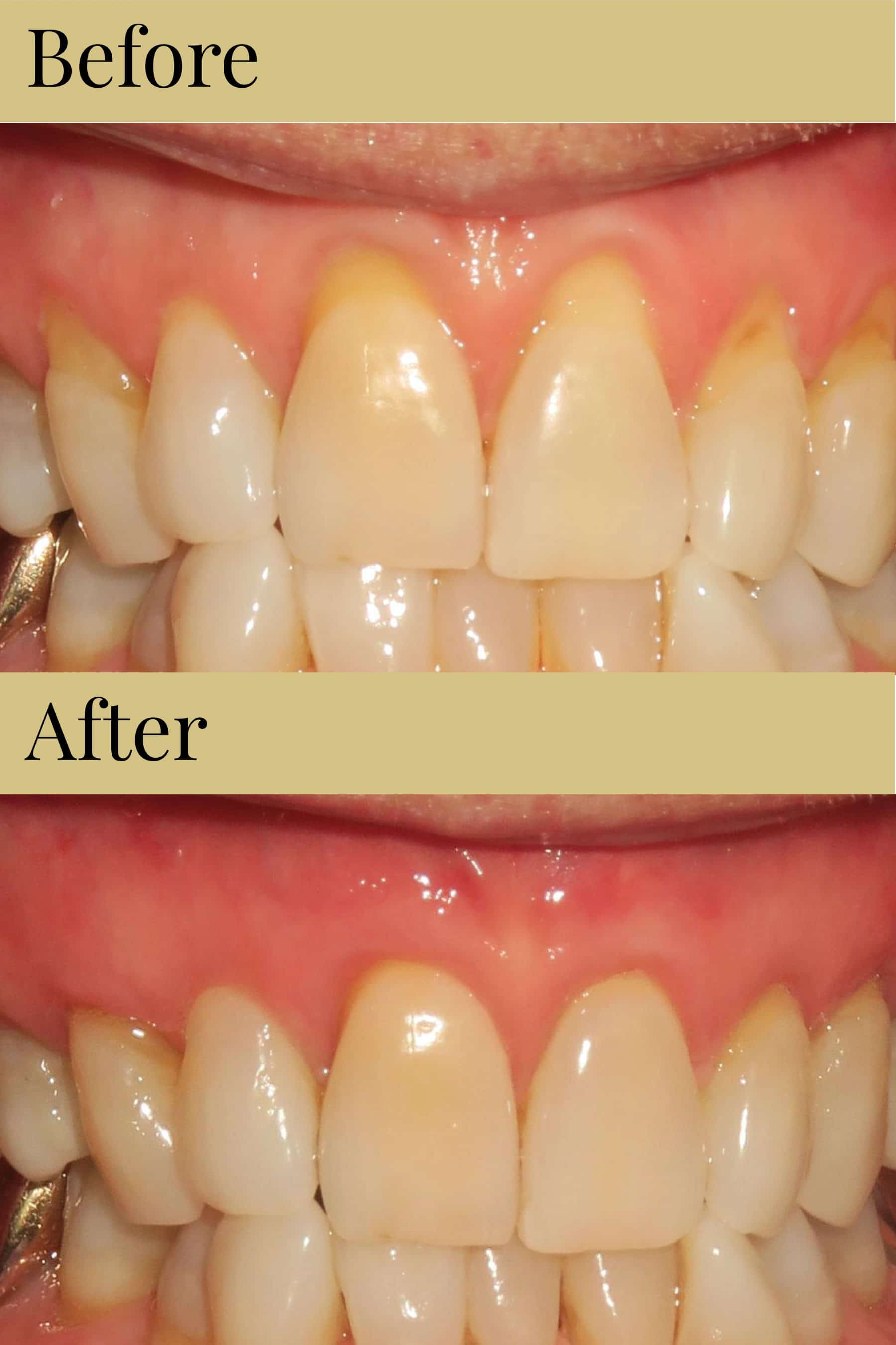Cosmetic Dentistry Makeover